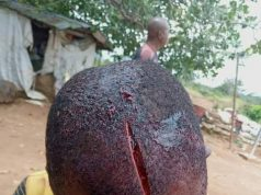 Graphic: Okada man reportedly forced into a bush in Abia and brutally hacked by two men in military uniform