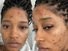 """My skin has made me sad many nights"" Keke Palmer says as she reveals her struggle with acne caused by PCOS"